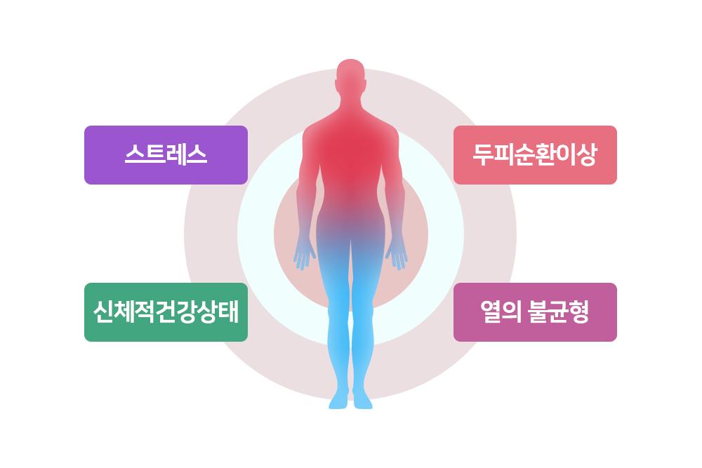 스트레스, 두피순환이상, 신체적건강상태, 열의 불균형