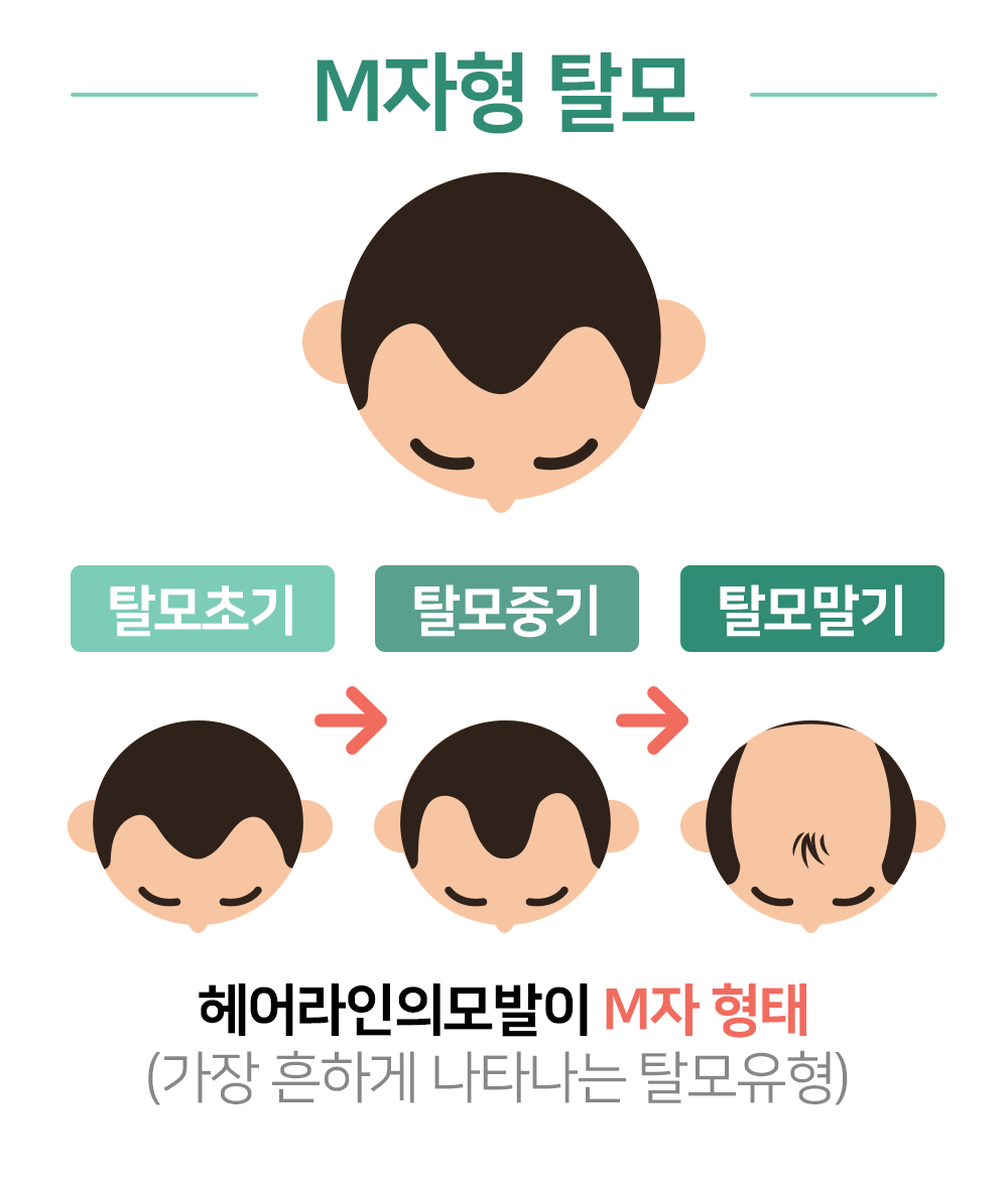 M자형 탈모. 헤어라인의모발이 M자 형태 (가장 흔하게 나타나는 탈모유형)